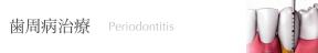 歯周病治療:Periodontitis