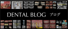 ブログ:DENTAL BLOG